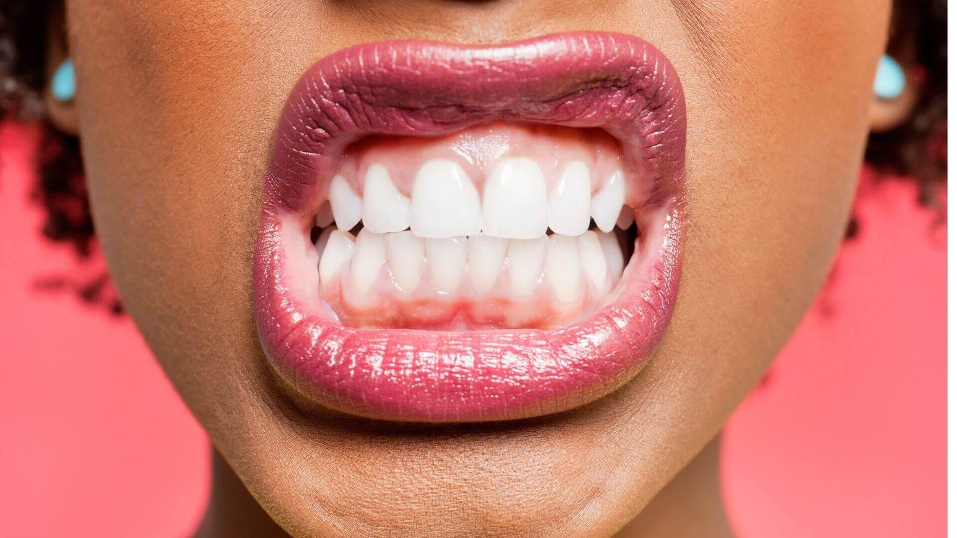 Ursachen für Zähneknirschen und Bruxismus im Schlaf