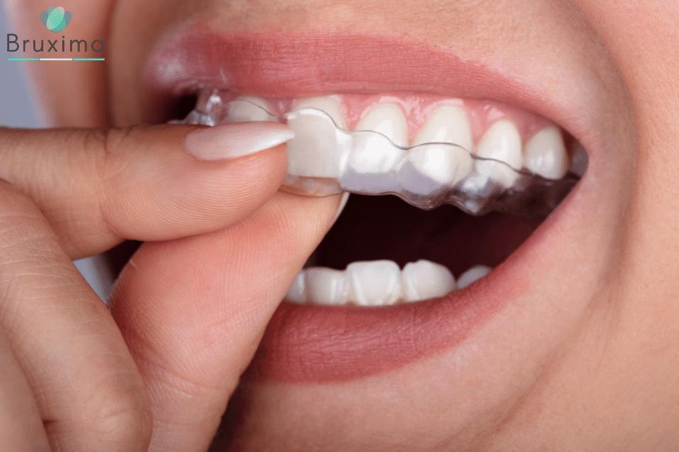 Zähneknirschen stoppen mit Bruxima