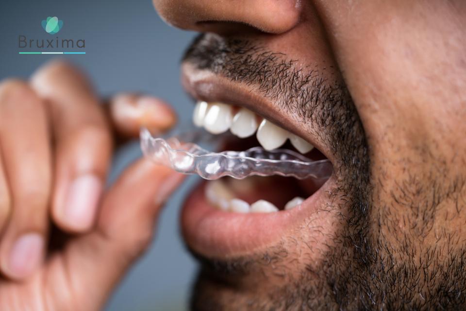 Bruxima Aufbissschiene gegen Zähneknirschen anpassen und reinigen
